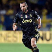 Juventus, contro l'Inter Sarri valuta Chiellini dal 1′. Ballottaggio a centrocampo